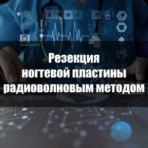 Резекция ногтевой пластины радиоволновым методом