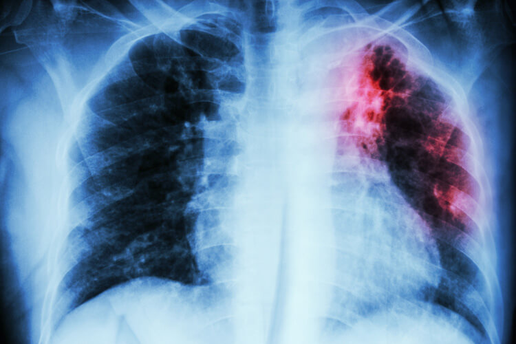Туберкулез: механизм развития и классификация болезни