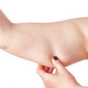 3D-липомоделирование рук