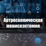 Артроскопическая менискэктомия