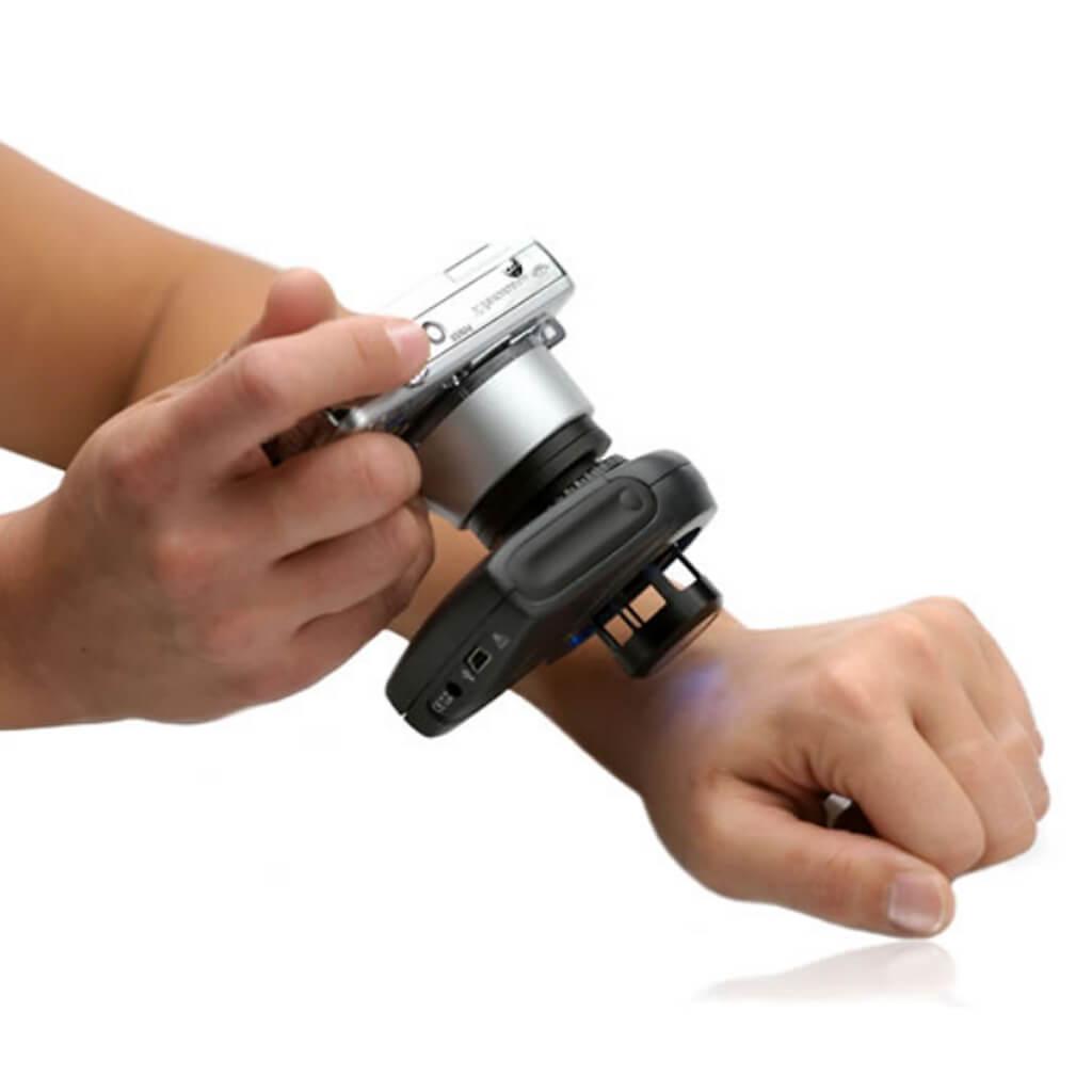 Дерматоскопия кожи: особенности, что показывает