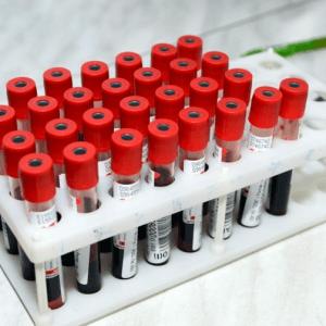 Исследование газового состава крови