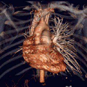 Контрастная томография сердца