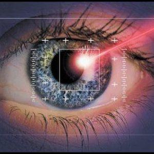 Лечение зрения лазером