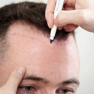 Лоскутный метод пересадки волос