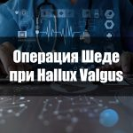 Операция Шеде при Hallux Valgus