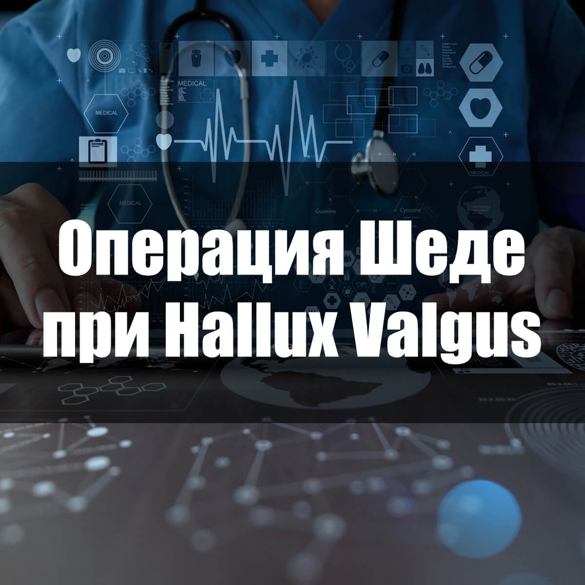 Hallux valgus: степени развития патологии
