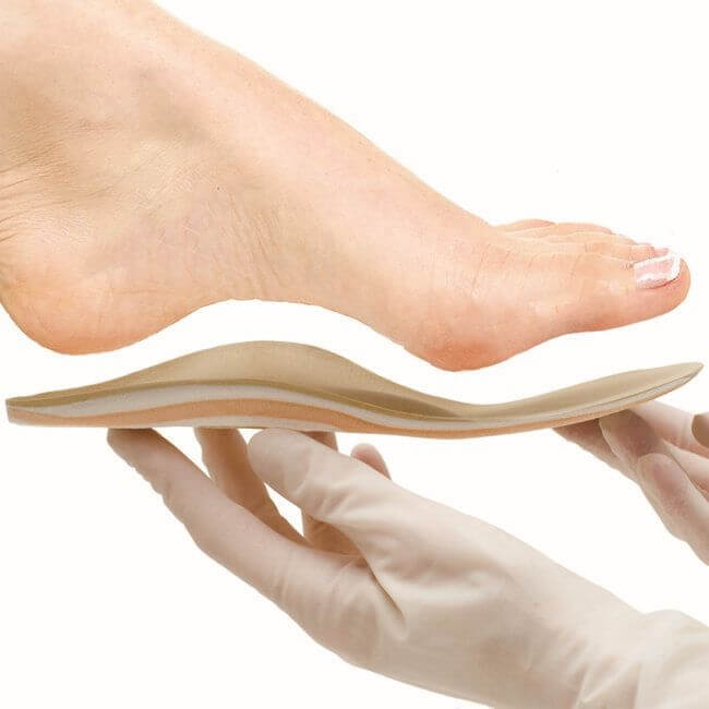 Ортопедические стельки: как выбрать и как носить