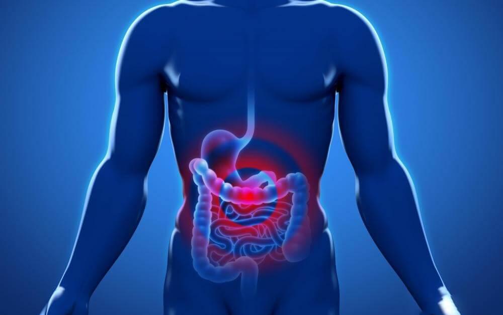 Перитонит - причины, симптомы, диагностика и лечение