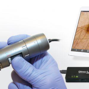 Поляризационный дерматоскоп