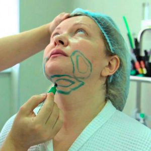 Проведение лазерной липосакции щек