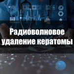 Радиоволновое удаление кератомы