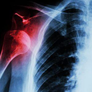 Рентген (рентгенография) плечевой кости