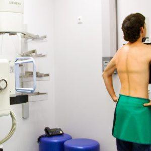Рентген (рентгенография) позвоночника
