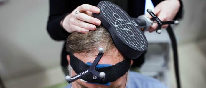 Транскраниальная электрическая стимуляция мозга