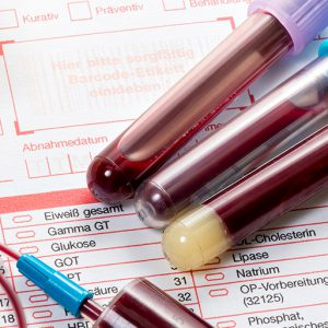Венозная кровь в пробирке