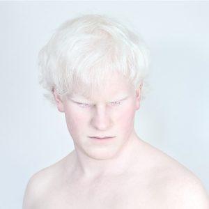 Депигментация кожи