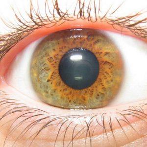 Дистрофия мышц глаз