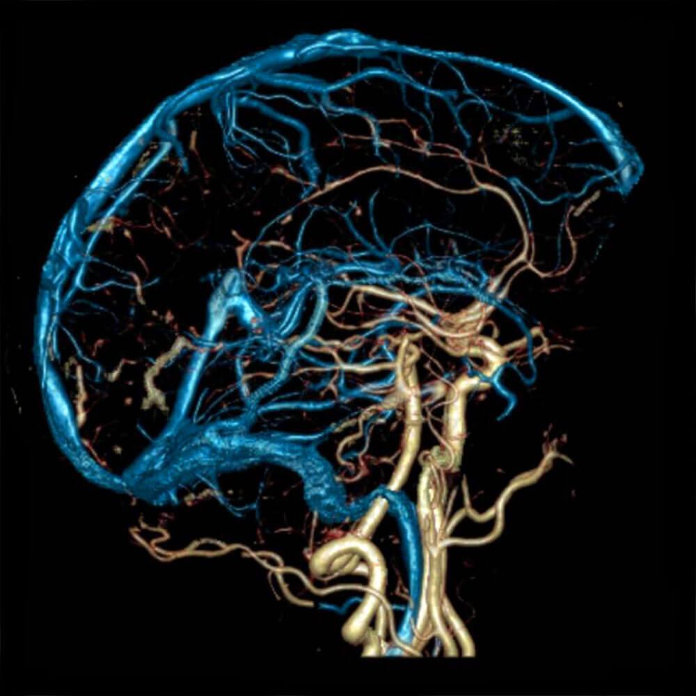 МРТ головного мозга или МРТ сосудов головного мозга: отличия