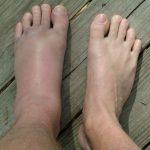 Отеки ступней