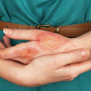 Термический ожог кожи