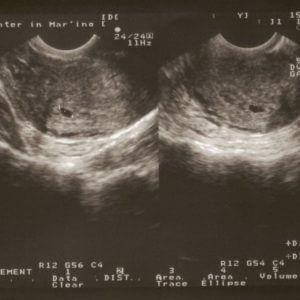 Ультразвуковое исследование (УЗИ) в 3 триместре беременности