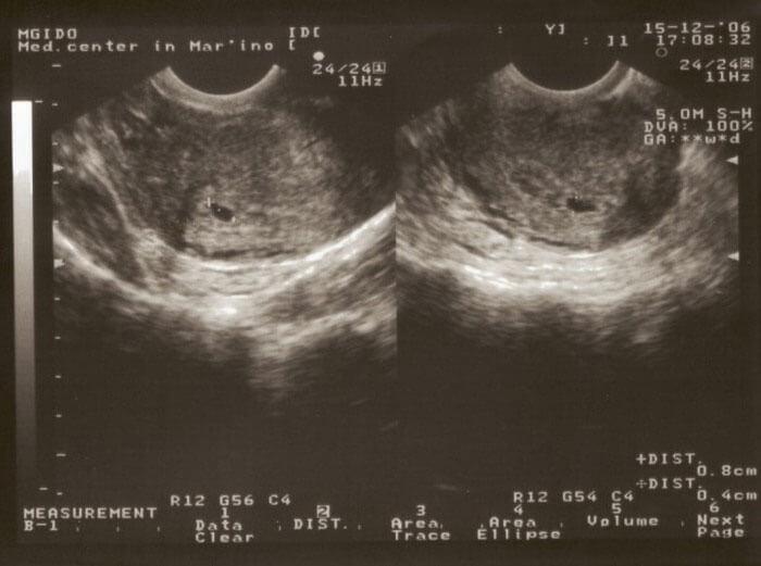 Расшифруем результаты узи может кому пригодится узи 3 триместр киев узи в 3 триместре беременности