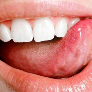 Что язык может рассказать о вашем здоровье