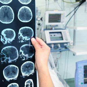 Диагностика Паркинсона