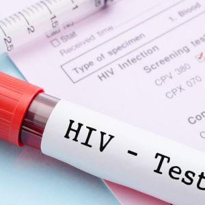 Причины развития СПИД