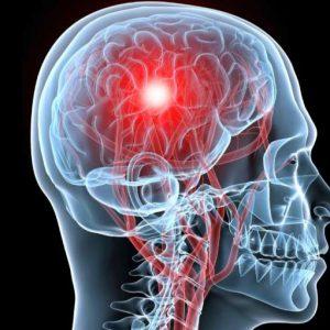 Травмы головного мозга