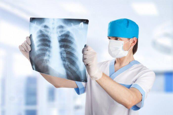 Препараты для лечения туберкулеза легких