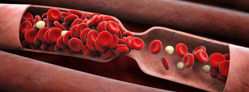 Синдром повышенной вязкости крови