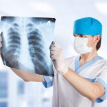 Флюорография органов грудной клетки