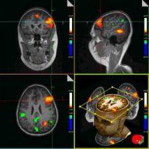 Функциональная магнитно-резонансная томография (МРТ)
