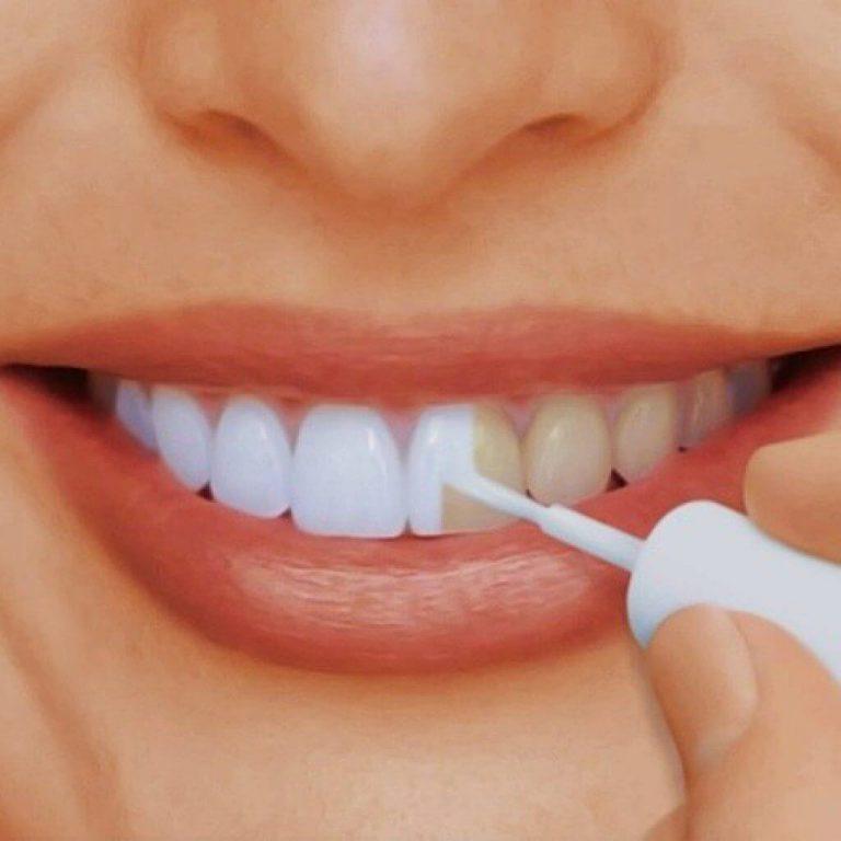 Потемнение эмали зуба