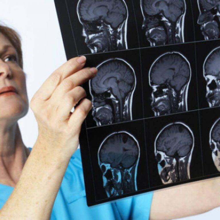 Причины заболевания менингитом