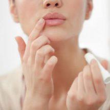 Трещины в уголках рта